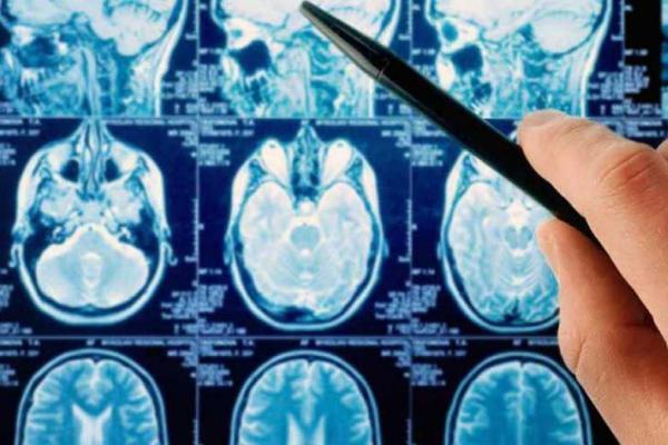درمان تومور مغزی در روزهای پایانی سال