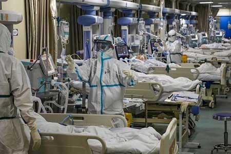 دو درصد بیماران کرونایی در ICU دچار سکته مغزی می گردد